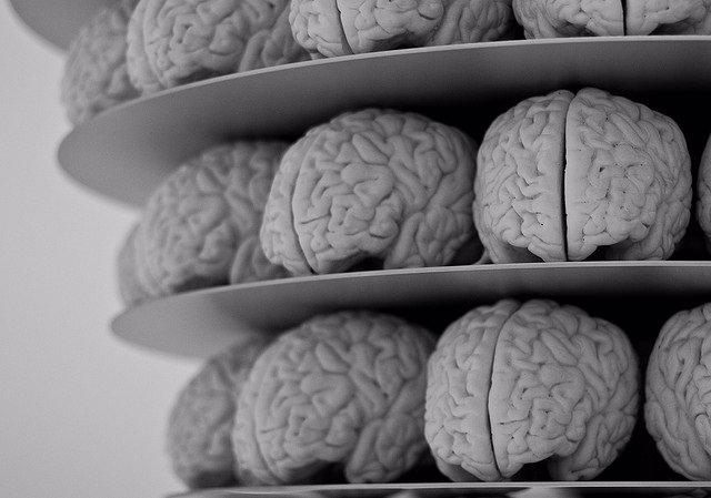 Archivo - Cerebro, Alzheimer.