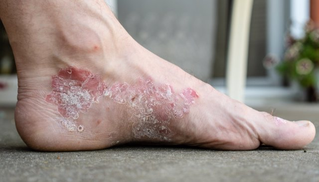 Archivo - Psoriasis, placa de psoriasis en pie.