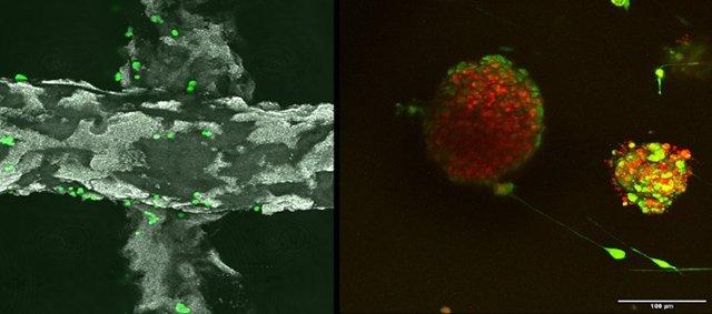 Investigadores españoles exploran las entrañas de tumores cultivados en andamios tridimensionales inteligentes
