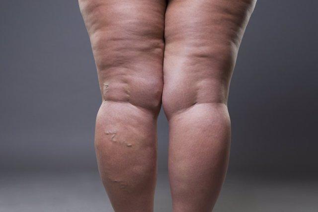 Archivo - Lipedema, piernas hinchadas