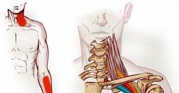 Foto: Así es el síndrome del opérculo torácico: cuando la costilla comprime las venas contra la clavícula