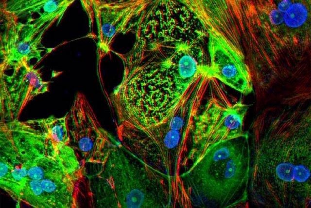 Esta imagen del tejido cardíaco diseñado muestra células de músculo cardíaco humano (rojo) infectadas con el SARS-CoV-2 (verde).