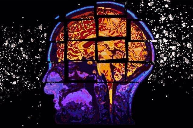 Archivo - Foto recurso. Cerebro, enfermedad de Alzheimer.