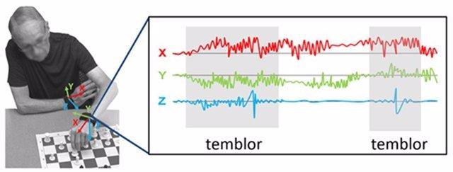 Desarrollan métodos de inteligencia artificial para detectar y seguir los síntomas motores del Parkinson