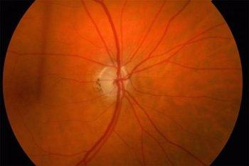 Foto: Las personas que padecen una grave discapacidad visual tienen más riesgo de morir por cualquier causa