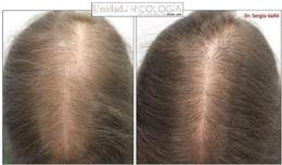Mujer de 33 años con alopecia androgénica. Respuesta a los 12 meses con minoxidil oral 1mg/día.