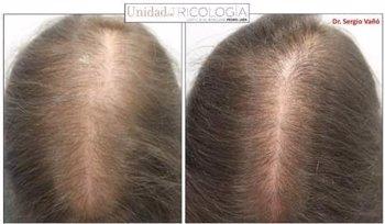 Foto: Un estudio confirma la eficacia de la terapia minoxidil oral en la alopecia androgénica