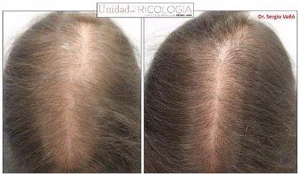 Un estudio confirma la eficacia de la terapia minoxidil oral en la alopecia androgénica