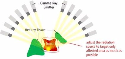 Crean una tecnología de inspiración cuántica para optimizar los planes de radiación de los tumores cerebrales