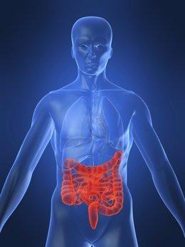 Archivo - Enfermedad de Crohn, intestino, enfermedad intestinal
