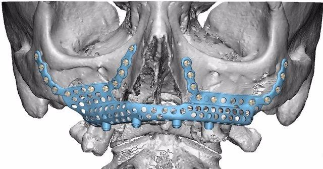 El Hospital La Luz ofrece la posibilidad de implantar una prótesis de titanio en el hueso maxilar superior