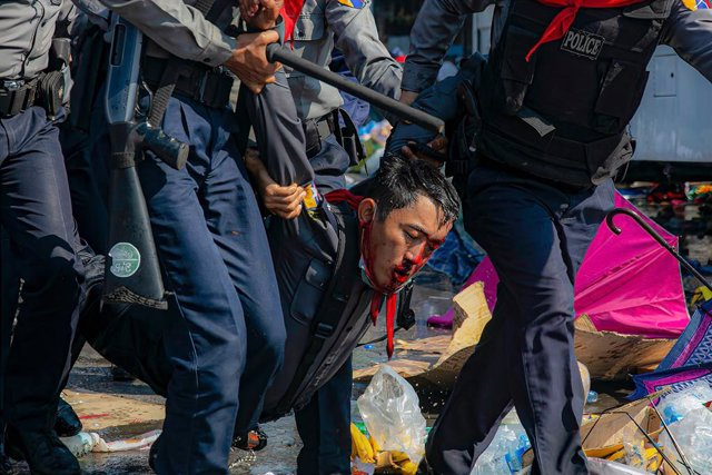 Un hombre herido tras las cargas policiales en una protesta contra el Gobierno militar en Birmania.