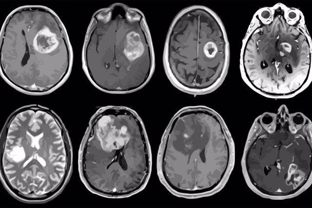 Glioblastoma, tumor cerebral agresivo mapeado en detalle genético y molecular.