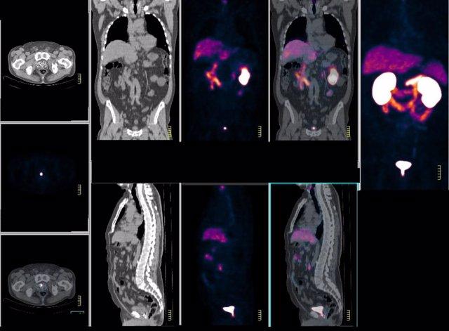 Archivo - PET-TAC con PSMA es una terapia efectiva en la detección y manejo del cáncer de próstata