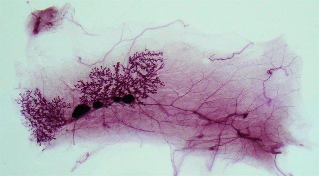 Glándula mamaria de una rata prepúber teñida para ver su desarrollo.