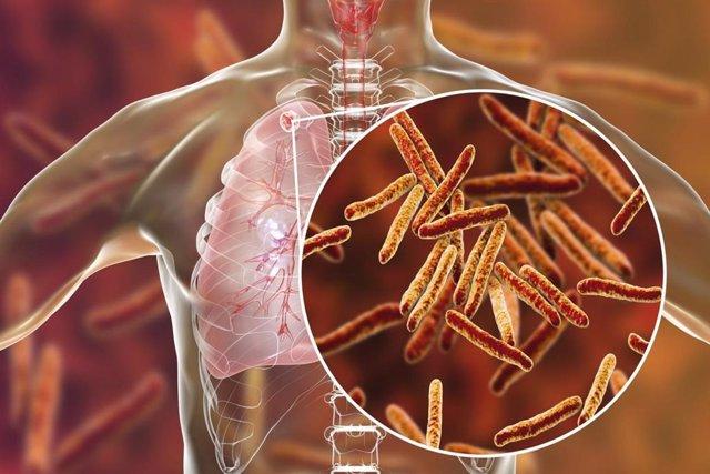 Archivo - Tuberculosis