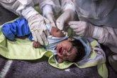 Foto: La OMS estima que 1,4 millones de personas menos recibieron atención por tuberculosis en 2020 por la pandemia