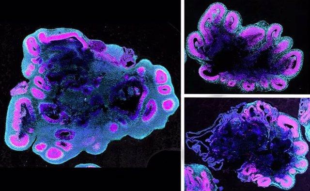 A las cinco semanas de edad, los organoides del cerebro humano (izquierda) son mucho más grandes que los de un gorila (arriba a la derecha) y un chimpancé (abajo a la derecha)