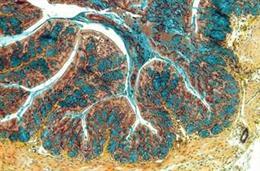 Imagen de un corte del intestino de un ratón afectado con enfermedad inflamatoria intestinal.