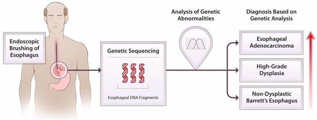 Una combinación de cepillado esofágico y secuenciación genética extensa de la muestra recolectada puede detectar alteraciones cromosómicas en personas con esófago de Barrett, identificando pacientes en riesgo de progresar a cáncer de esófago
