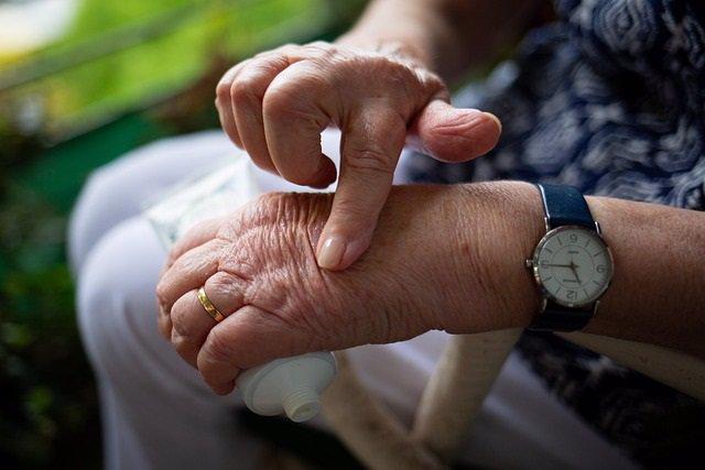 Archivo - Mujer mayor con artritis en la mano.