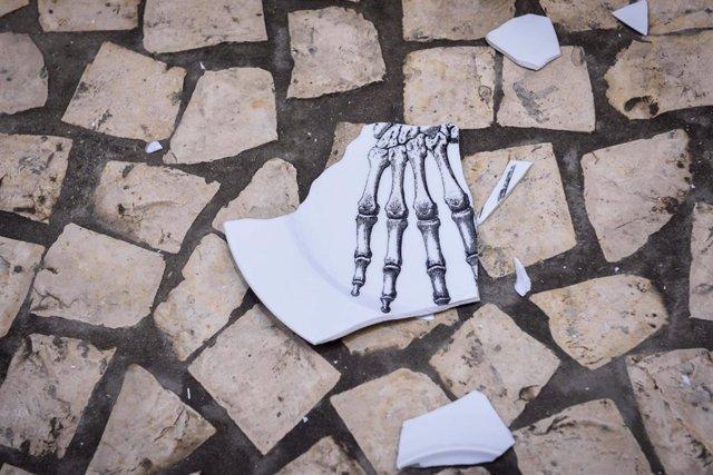 Archivo - Plato roto por la osteoporosis