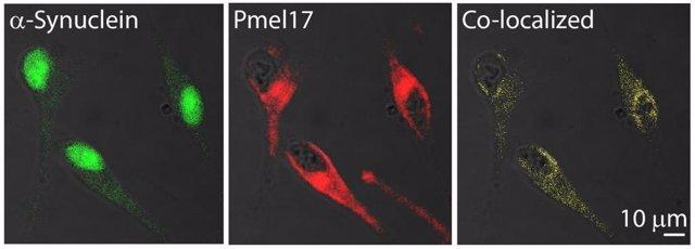 Imágenes de inmunofluorescencia muestran que parte de la a-sinucleína y Pmel17 se encuentran en las mismas localizaciones en las células de melanoma humano.