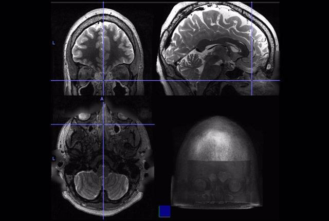 Exploraciones por resonancia magnética cuyo punto de mira se fija en el tabique nasal de un paciente.
