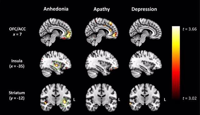 La pérdida de placer puede ser un síntoma precoz de demencia