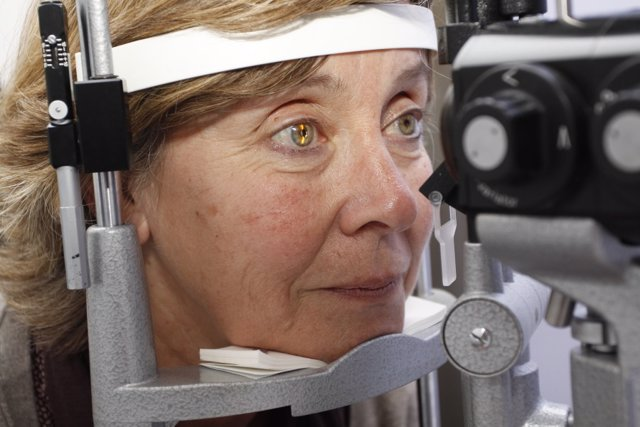 Archivo - Revisión de degeneración macular asociada a la edad (DMAE)