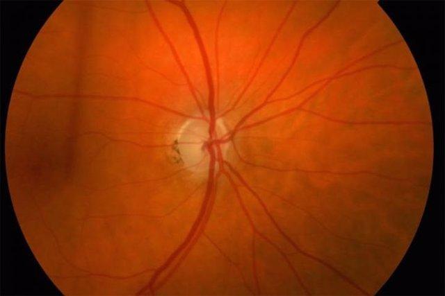 Archivo - Glaucoma