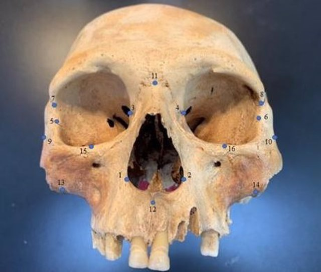 Archivo - Cráneo de un caribe