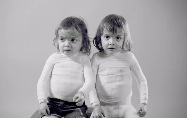 Carla y Noa, dos gemelas con 'Piel de mariposa'