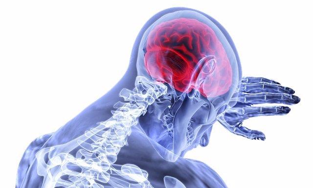 Archivo - Ictus, ataque cerebrovascular