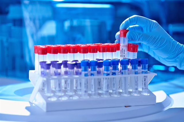 Archivo - Arxiu - Test PCR