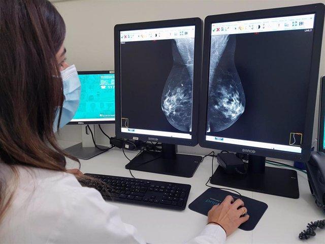 Archivo - Mamografía