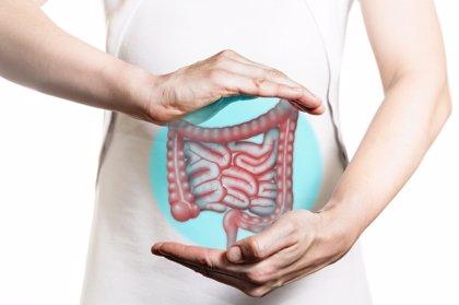 El 90% de los casos de cáncer de colon está relacionado con una dieta desequilibrada