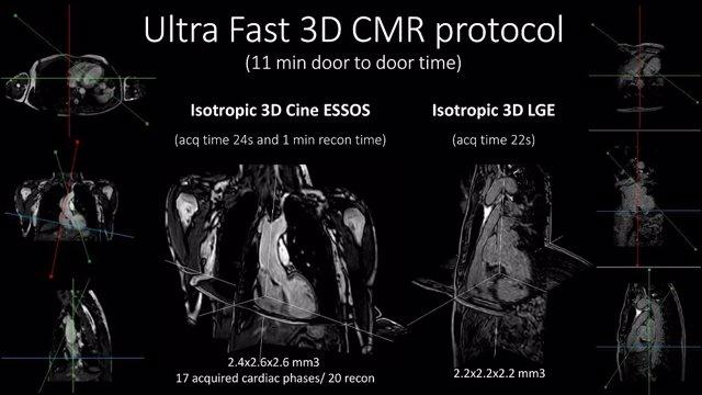 Archivo - CNIC y Philips desarrollan una resonancia magnética cardiaca ultra-rápida que analiza el corazón en menos de 1 minuto.