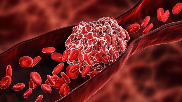 Archivo - Coágulos de sangre, trombo