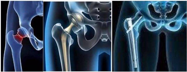 Fractura de cadera.