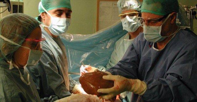 Archivo - Trasplante hepático en el Hospital Clínico