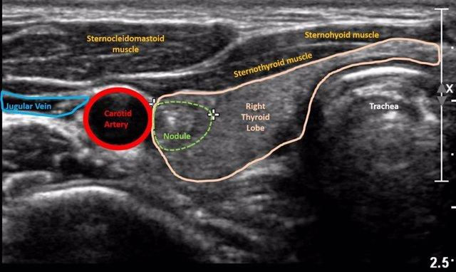 Archivo - Imagen de ultrasonido del nódulo tiroideo.