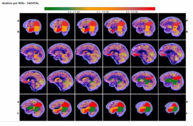La Salud realiza de forma sistemática estudios cerebrales cuantificados capaces de valorar la evolución de la demencia