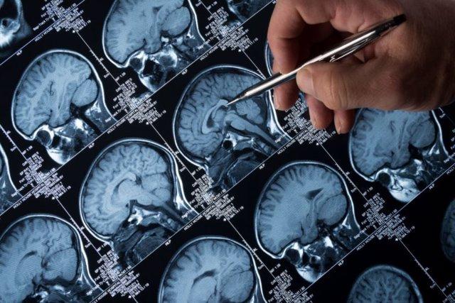 Archivo - Epilepsia.