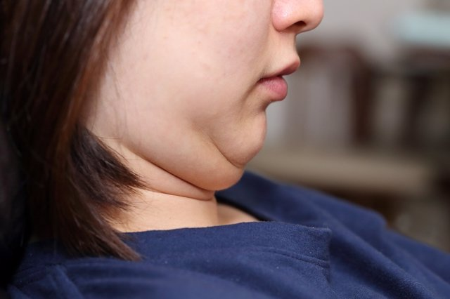 Archivo - Papada, obesidad, sobrepeso