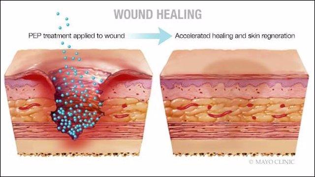 Investigadores consiguen sanar con piel sin cicatrices heridas crónicas de difícil tratamiento