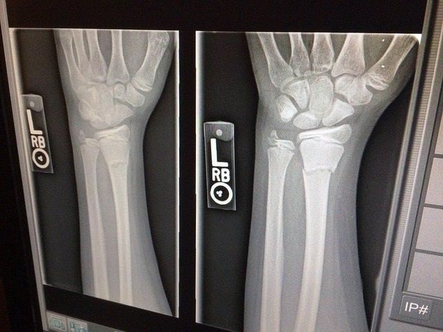Archivo - Huesos, Radiografía