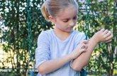 Foto: ¿Por qué cada vez es más frecuente la piel atópica en niños? Cuidados básicos de cara al buen tiempo