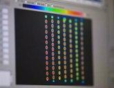 Foto: La mayoría de pacientes de cáncer en España desconoce la opción de la secuenciación genómica