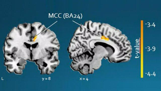 Identifican la afectación de una región cerebral que predice la evolución de la apatía en los pacientes de Huntington.